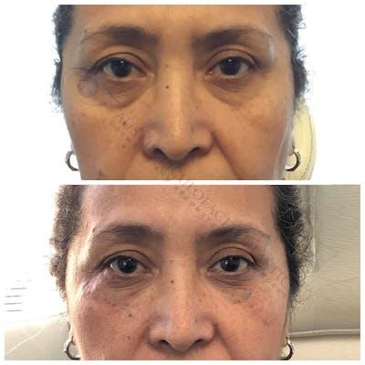 Lower Eye Bags Gallery - Patient 4698717 - Image 1