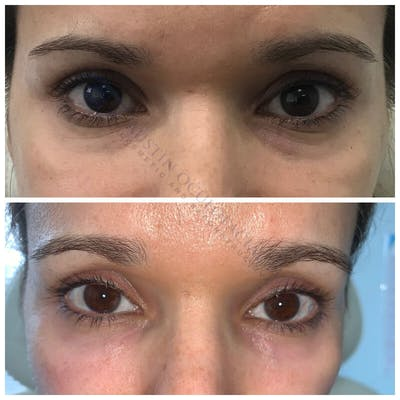 Lower Eye Bags Gallery - Patient 4698718 - Image 1