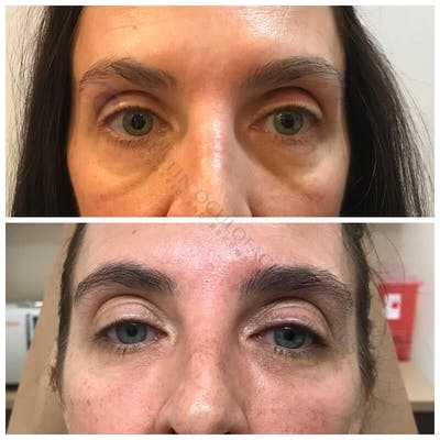 Lower Eye Bags Gallery - Patient 4698720 - Image 1