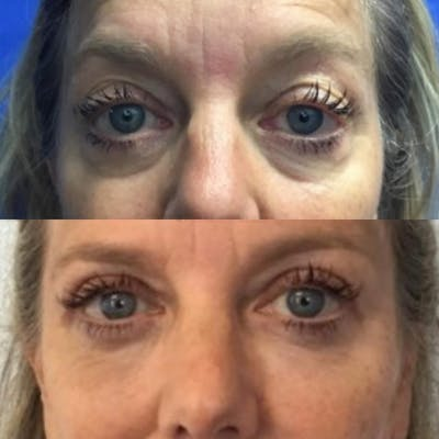 Lower Eye Bags Gallery - Patient 4698721 - Image 1