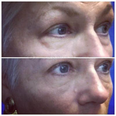 Lower Eye Bags Gallery - Patient 4698722 - Image 1