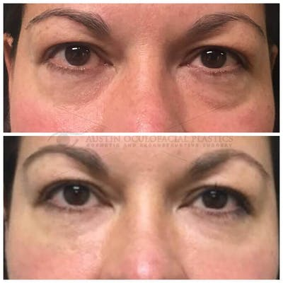 Lower Eye Bags Gallery - Patient 4698724 - Image 1