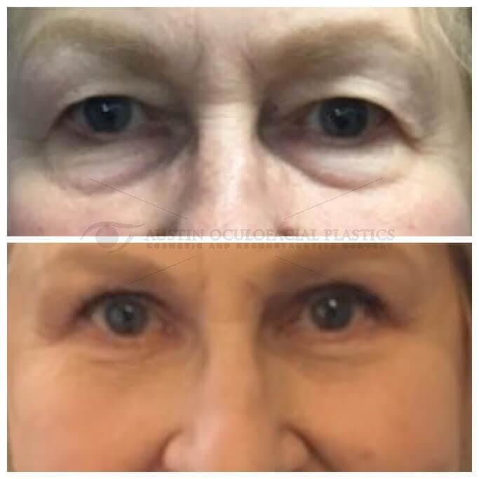 Lower Eye Bags Gallery - Patient 4698725 - Image 1