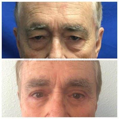 Lower Eye Bags Gallery - Patient 4698726 - Image 1