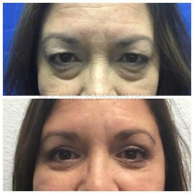 Lower Eye Bags Gallery - Patient 4698727 - Image 1