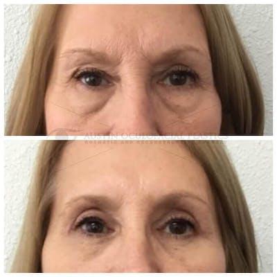 Lower Eye Bags Gallery - Patient 4698728 - Image 1