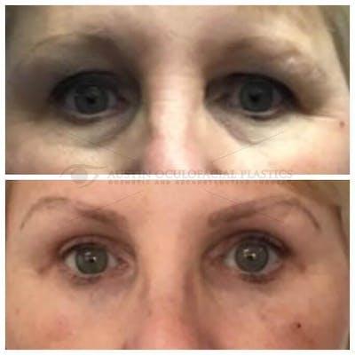 Lower Eye Bags Gallery - Patient 4698730 - Image 1