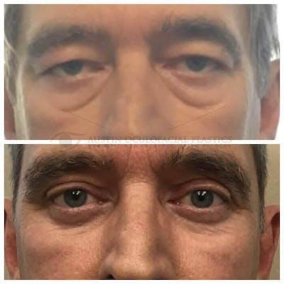 Lower Eye Bags Gallery - Patient 4698731 - Image 1