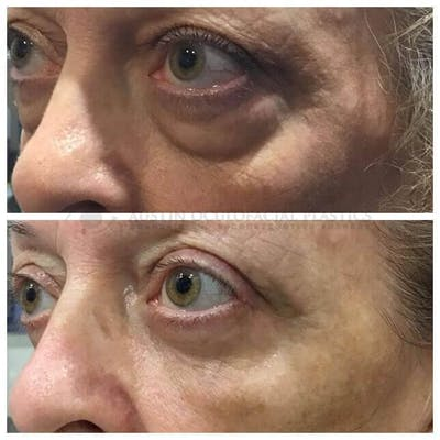 Lower Eye Bags Gallery - Patient 4698732 - Image 1