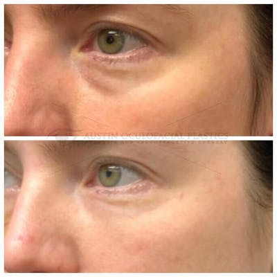 Lower Eye Bags Gallery - Patient 4698733 - Image 1