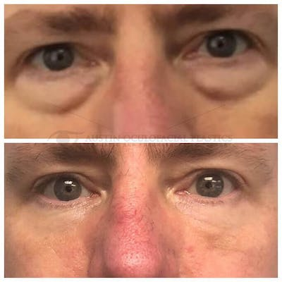 Lower Eye Bags Gallery - Patient 4698735 - Image 1