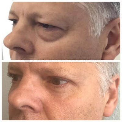 Lower Eye Bags Gallery - Patient 4698736 - Image 1