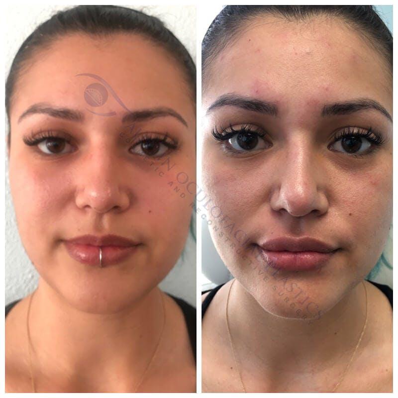 Lips Gallery - Patient 4698759 - Image 1