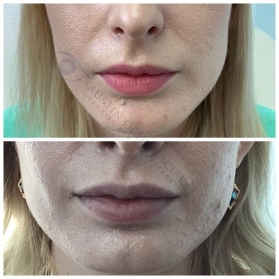 Lips Gallery - Patient 4698760 - Image 1