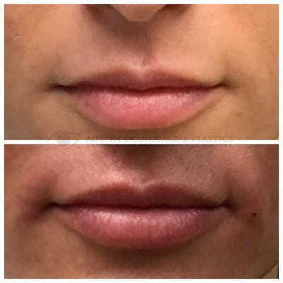 Lips Gallery - Patient 4698761 - Image 1