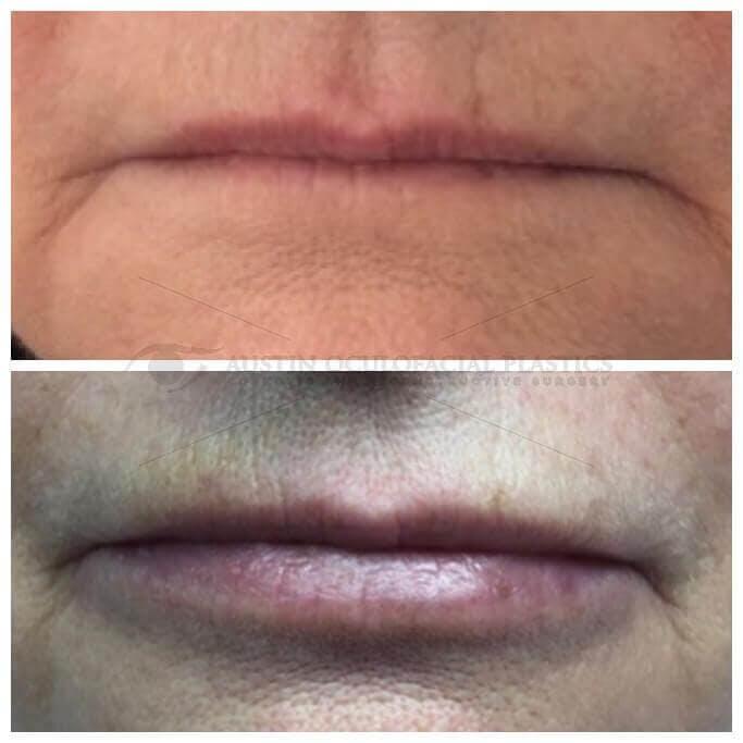 Lips Gallery - Patient 4698762 - Image 1
