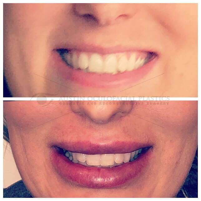 Lips Gallery - Patient 4698763 - Image 1