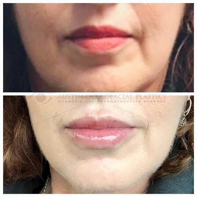 Lips Gallery - Patient 4698764 - Image 1