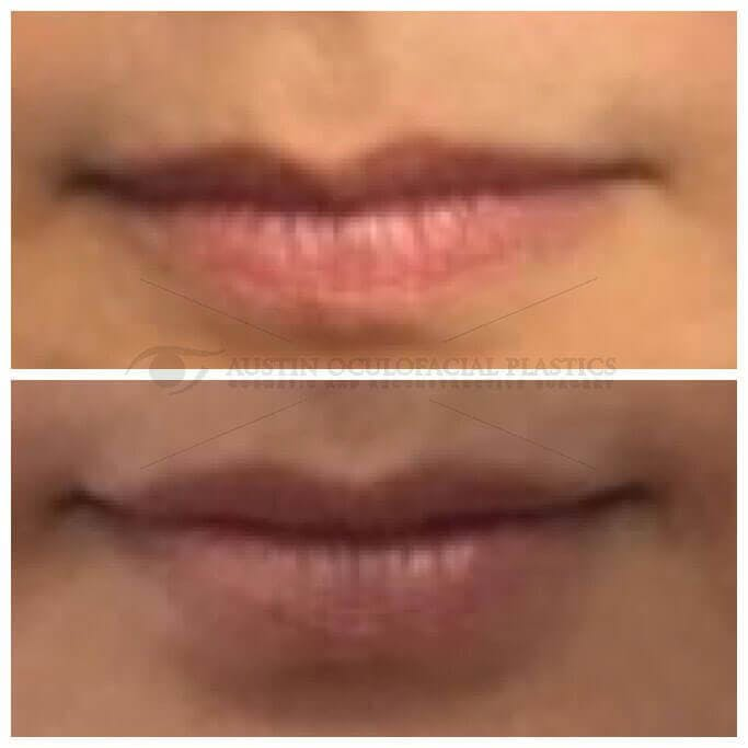 Lips Gallery - Patient 4698765 - Image 1