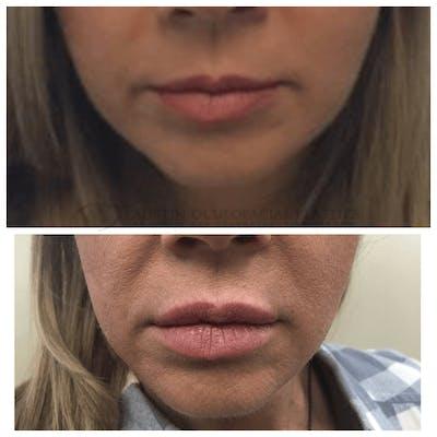 Lips Gallery - Patient 4698766 - Image 1
