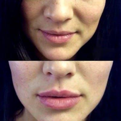 Lips Gallery - Patient 4698769 - Image 1