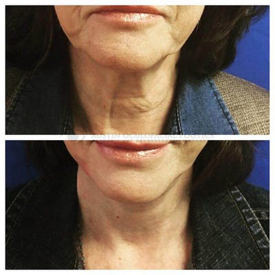 Face and Neck Gallery - Patient 4698775 - Image 1