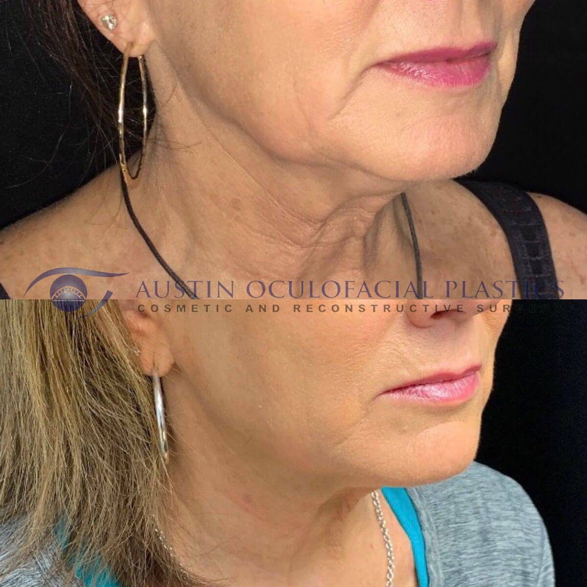 Face and Neck Gallery - Patient 4698779 - Image 1