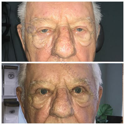 Ptosis Gallery - Patient 4698784 - Image 1