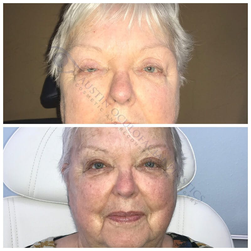 Ptosis Gallery - Patient 4698785 - Image 1