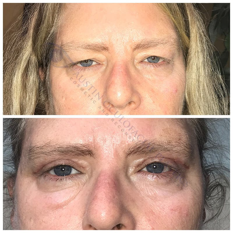 Ptosis Gallery - Patient 4698786 - Image 1