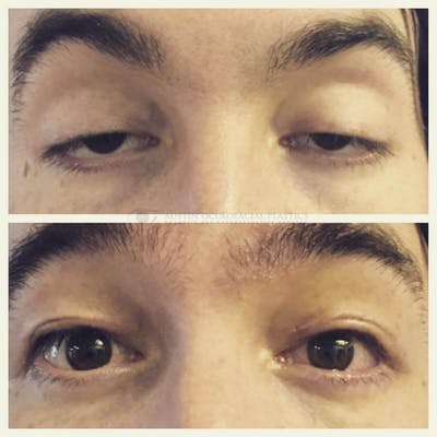 Ptosis Gallery - Patient 4698788 - Image 1