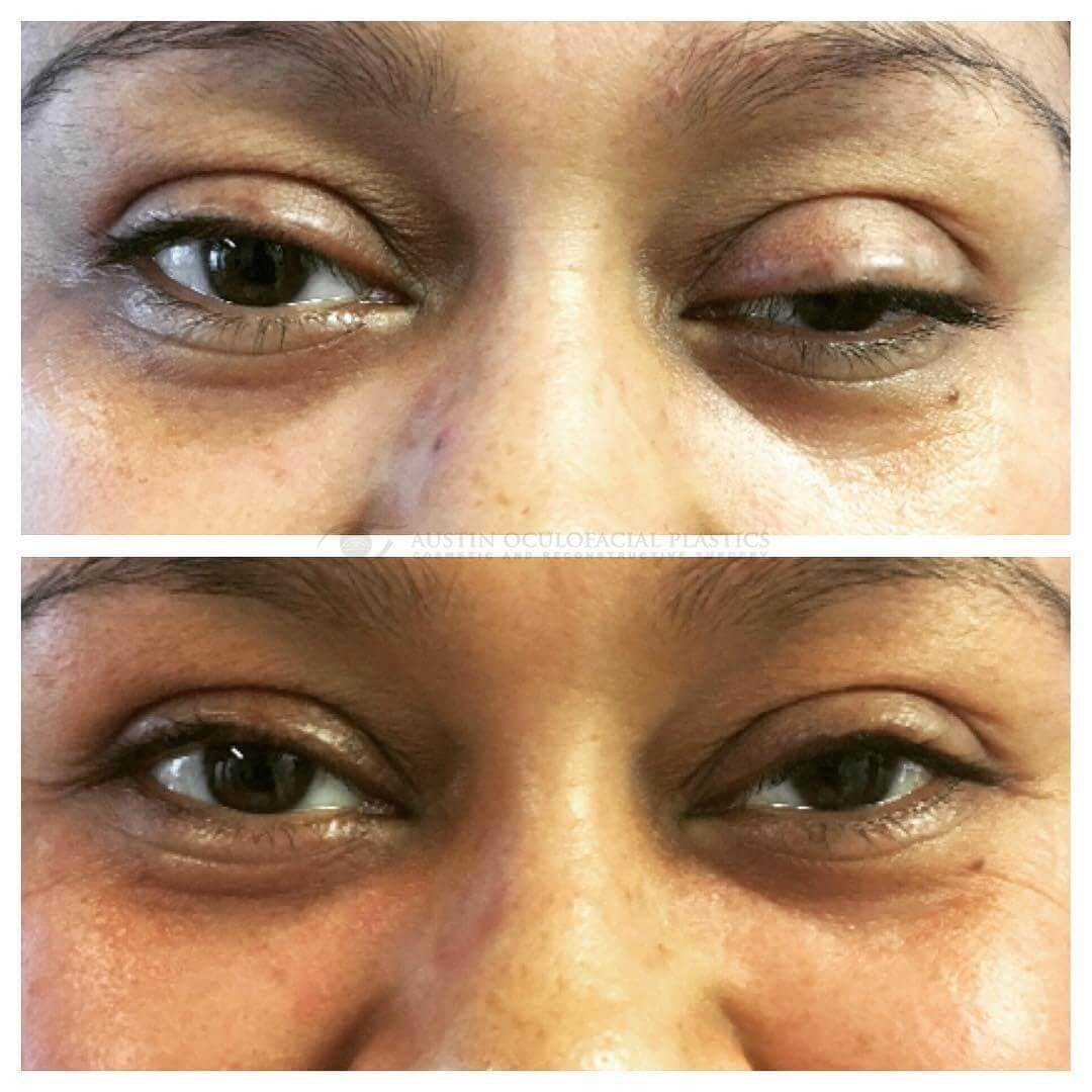 Ptosis Gallery - Patient 4698789 - Image 1