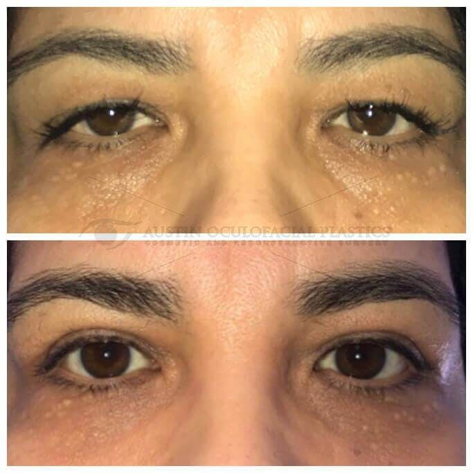 Ptosis Gallery - Patient 4698790 - Image 1
