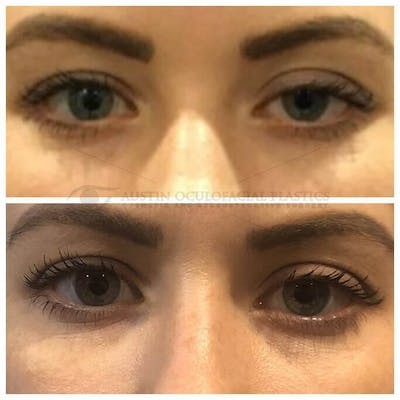 Ptosis Gallery - Patient 4698791 - Image 1