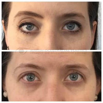 Ptosis Gallery - Patient 4698792 - Image 1