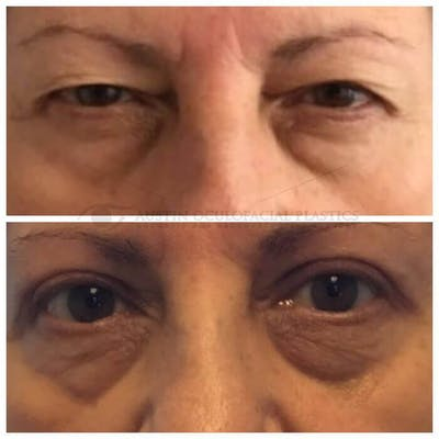 Ptosis Gallery - Patient 4698793 - Image 1