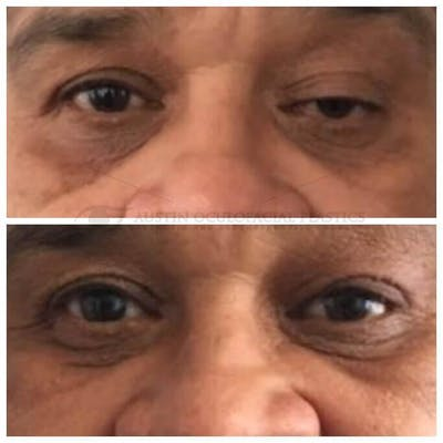 Ptosis Gallery - Patient 4698794 - Image 1