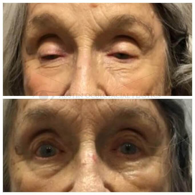 Ptosis Gallery - Patient 4698795 - Image 1