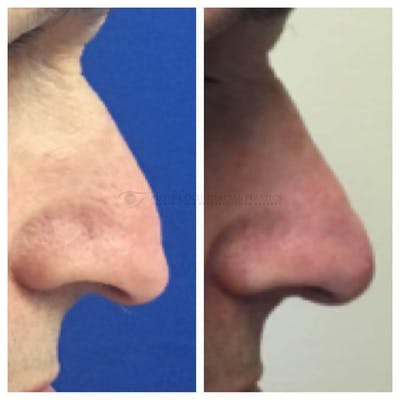 Nose Gallery - Patient 4698799 - Image 1