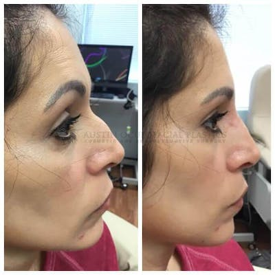 Nose Gallery - Patient 4698800 - Image 1