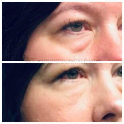 Accutite Facetite Morpheus Before and After Gallery - Patient 4698817 - Image 1