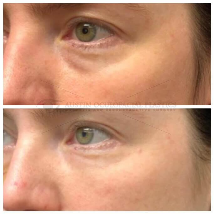 Accutite Facetite Morpheus Before and After Gallery - Patient 4698818 - Image 1