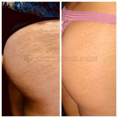 Accutite Facetite Morpheus Before and After Gallery - Patient 4698819 - Image 1