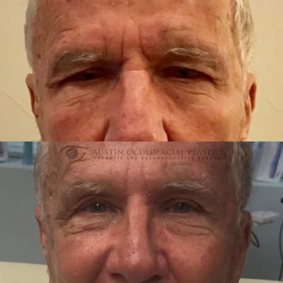 Accutite Facetite Morpheus Before and After Gallery - Patient 4698820 - Image 1