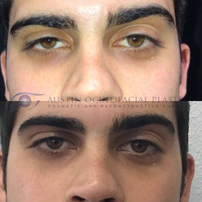 Accutite Facetite Morpheus Before and After Gallery - Patient 4698821 - Image 1