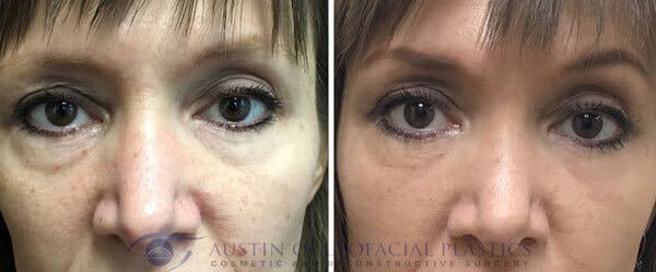 Accutite Facetite Morpheus Before and After Gallery - Patient 4698822 - Image 1