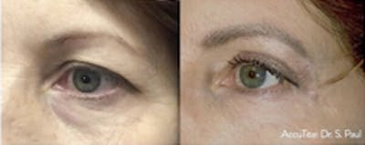 Accutite Facetite Morpheus Before and After Gallery - Patient 4698823 - Image 1