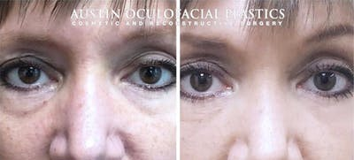 Accutite Facetite Morpheus Before and After Gallery - Patient 4698824 - Image 1