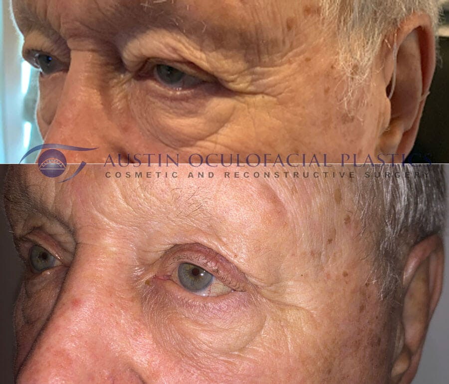 Accutite Facetite Morpheus Before and After Gallery - Patient 4698825 - Image 1