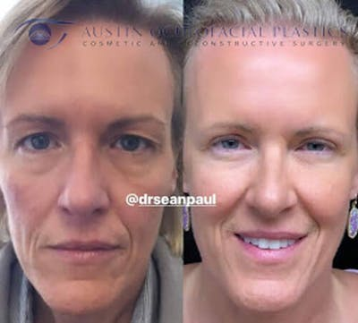 Accutite Facetite Morpheus Before and After Gallery - Patient 4698826 - Image 1
